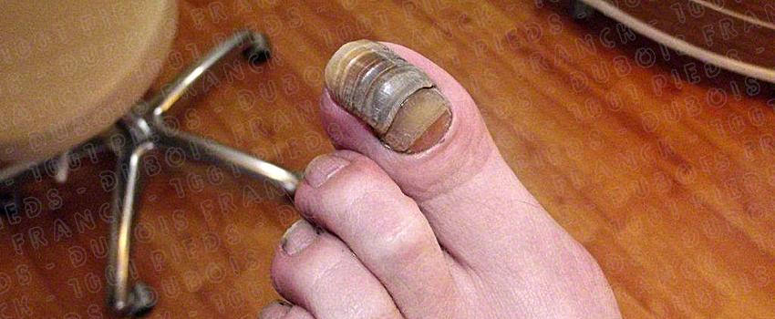 soins des ongles de pieds