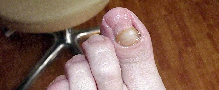 Le microorganisme végétal des ongles des pieds du comprimé