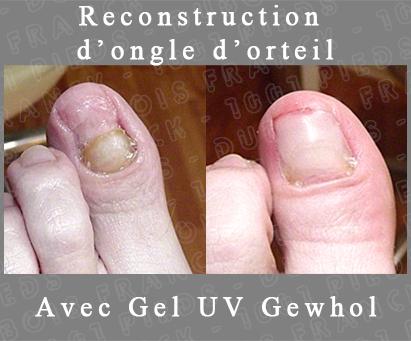 Le microorganisme végétal sur les ongles des pieds de la raison